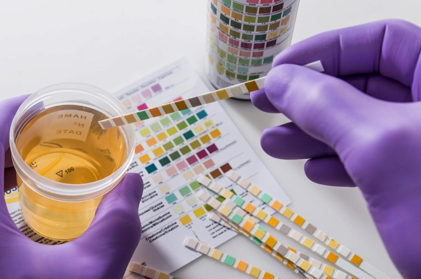 CBD a pozitívny test na drogy (THC)